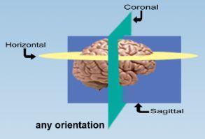 any orientation