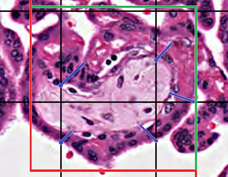 placenta villi and mbs
