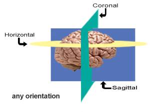 any orientation brain