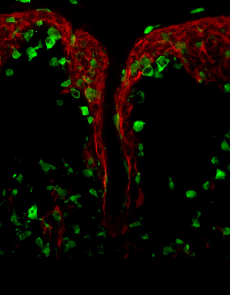 Red, Green, choroid no probe, exported